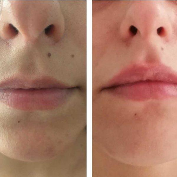 acido-hialuronico-en-labios-clinica-estetica-teresa-nieto
