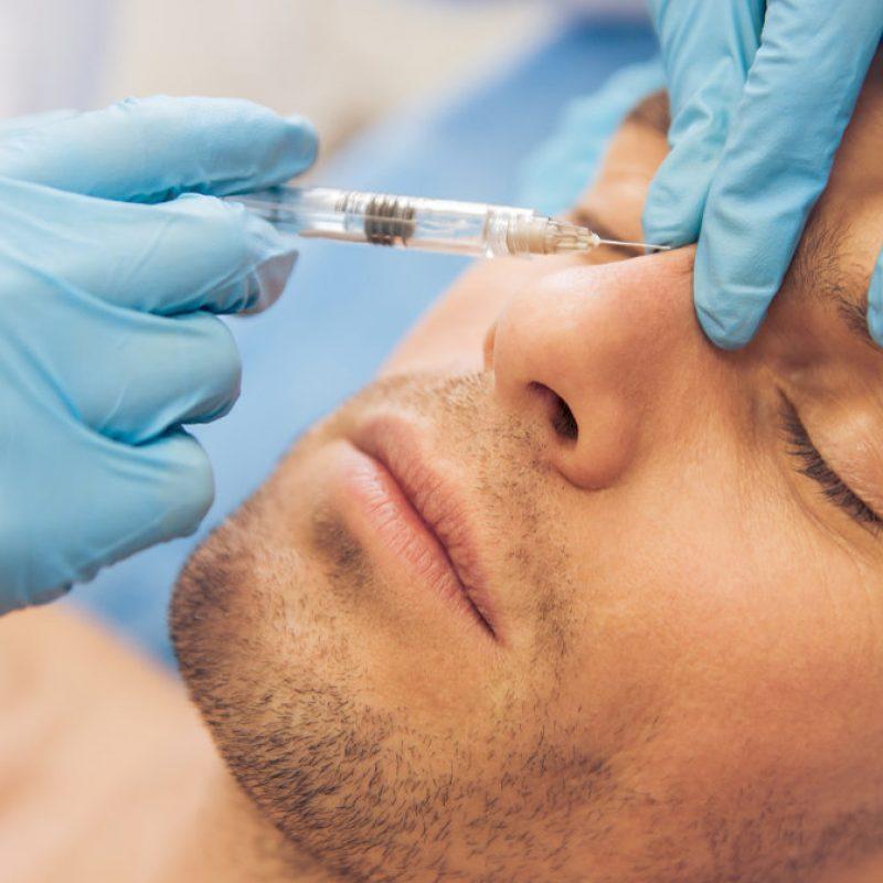 Botox para hombres Madrid | Clínica Estética Teresa Nieto Madrid
