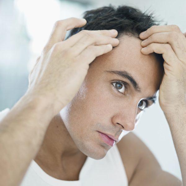 Tratamientos capilares masculinos Madrid | Clínica Médico Estética Teresa Nieto